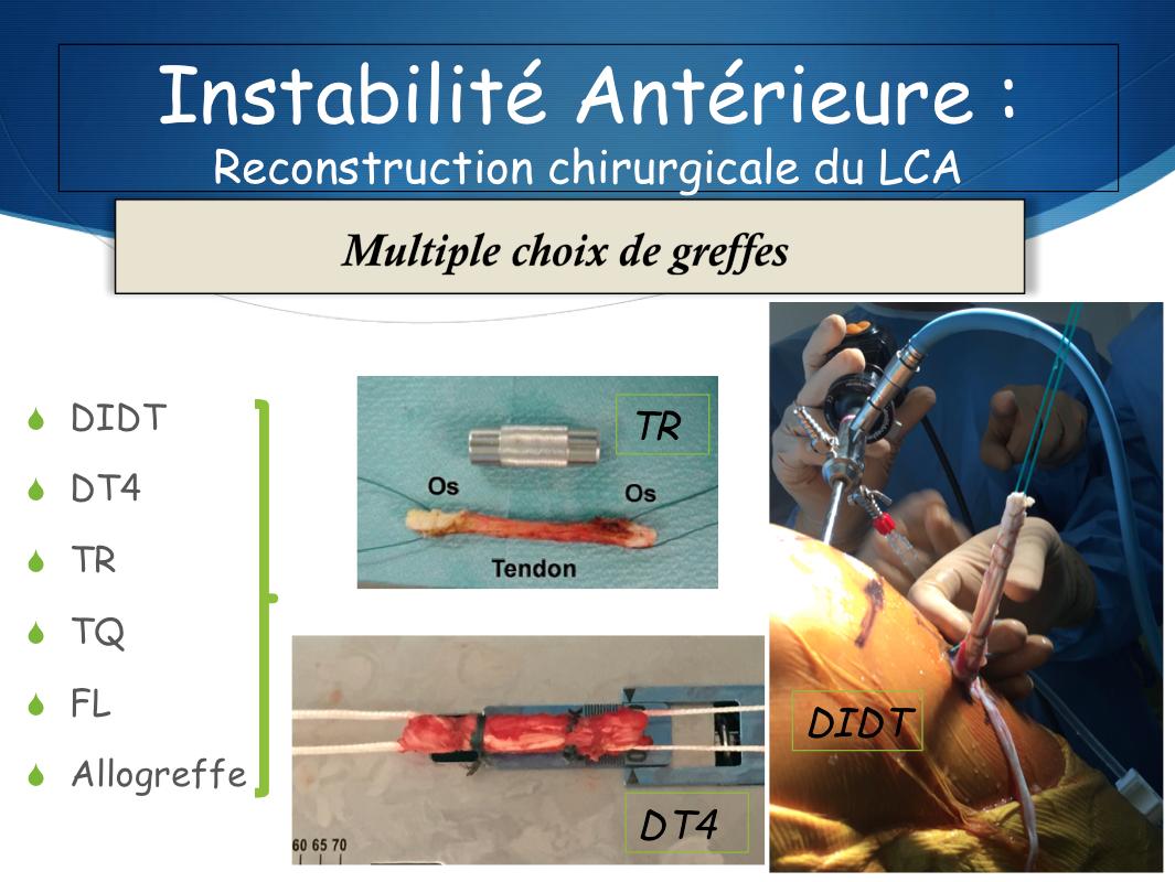Operation ligament croisé postérieur Marseille